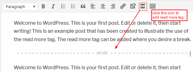 how to add read more to a wordpress page